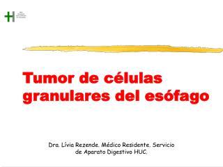 Tumor de c lulas granulares del es fago