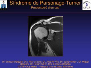 S ndrome de Parsonage-Turner Presentaci  d un cas