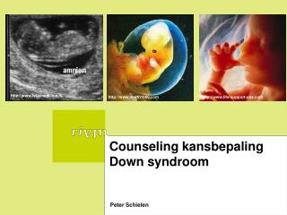 Counseling kansbepaling Down syndroom