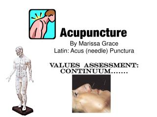 By Marissa GraceLatin: Acus needle PuncturaValues  Assessment: Continuum