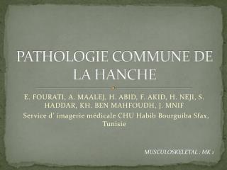 PATHOLOGIE COMMUNE DE LA HANCHE