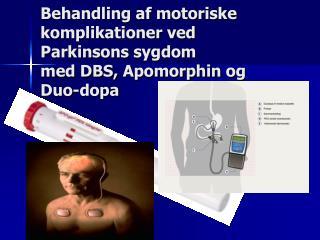 Behandling af motoriske komplikationer ved  Parkinsons  sygdom  med DBS,  Apomorphin  og Duo- dopa