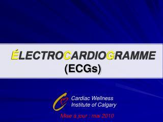 LECTROCARDIOGRAMME ECGs