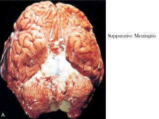Suppurative Meningitis