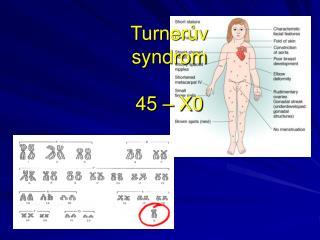 Turnerův  syndrom 45 – X0