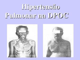 Hipertensão      Pulmonar na DPOC