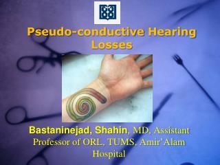 Pseudo-conductive  Hearing Losses