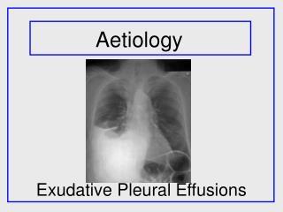 Exudative Pleural Effusions
