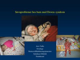Søvnproblemer hos barn med Downs syndrom