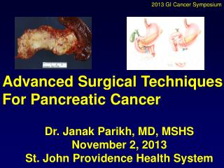 Advanced Surgical Techniques  For Pancreatic Cancer