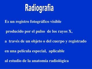 Es un registro fotográfico visible  producido por el pulso  de los rayos X,