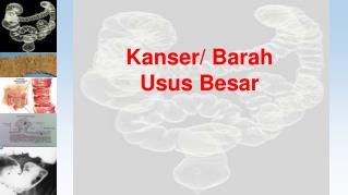 Kanser/ Barah Usus Besar