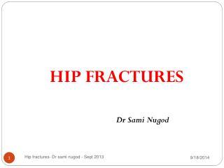 HIP FRACTURES Dr Sami Nugod