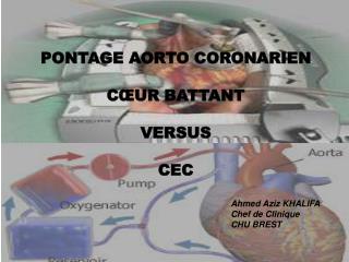 PONTAGE AORTO CORONARIEN CŒUR BATTANT  VERSUS CEC Ahmed Aziz KHALIFA Chef de Clinique