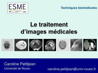 Le traitement d'images médicales