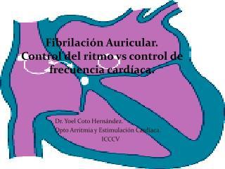 Fibrilación Auricular. Control del ritmo vs control de frecuencia cardíaca.