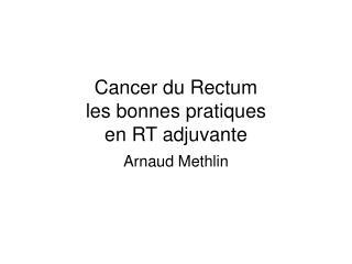 Cancer du Rectum les bonnes pratiques  en RT adjuvante