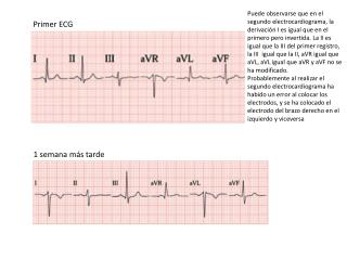Primer ECG