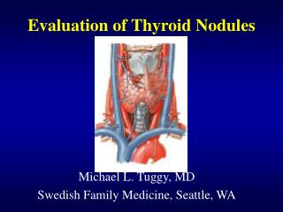 Evaluation of Thyroid Nodules