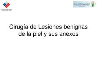 Cirugía de Lesiones benignas de la piel y sus anexos