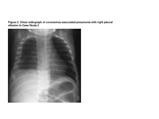Figure2_Heugel-etal-CoV-associated-pneumonia