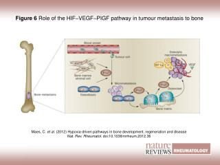 Figure 6 Role of the HIF–VEGF–PIGF pathway in tumour metastasis to bone