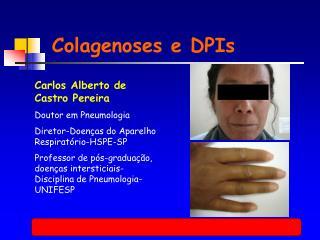 Colagenoses e DPIs
