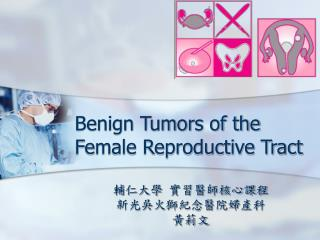 Benign Tumors of the Female Reproductive Tract