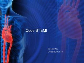 Code STEMI