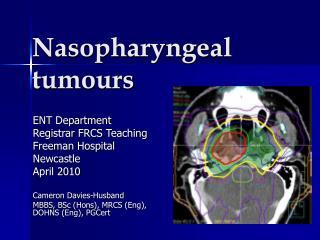 Nasopharyngeal tumours
