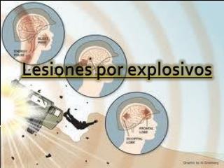 Lesiones por explosivos