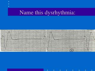Name this dysrhythmia: