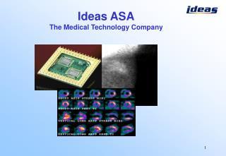 I deas ASA The Medical Technology Company