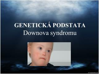 GENETICKÁ PODSTATA  Downova syndromu