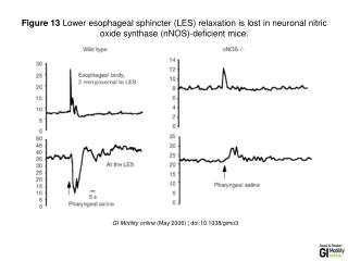 GI Motility online  (May 2006) | doi:10.1038/gimo3