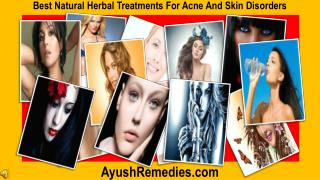 Best Natural Herbal Treatments For Acne And Skin Disorders