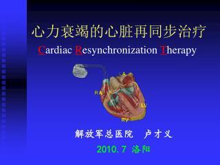 心力衰竭的心脏再同步治疗 C ardiac R esynchronization T herapy