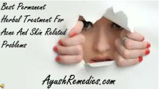 Best Permanent Herbal Treatment For Acne And Skin Related Pr