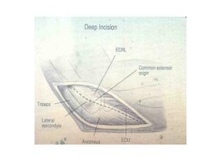 Posterolateral Rotatory Instability (PLRI)