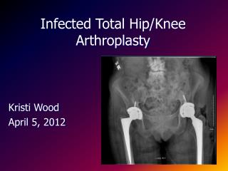 Infected Total Hip/Knee Arthroplasty