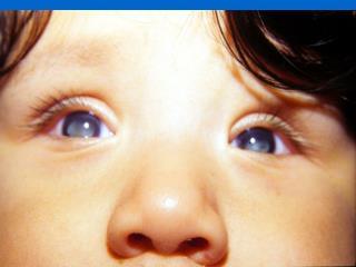ROP Como Causa de Ceguera                                 en Países de Moderados Ingresos (LAC)(%)