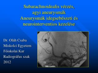 Subarachnoidealis vérzés,  agyi aneurysmák Aneurysmák idegsebészeti és neurointerventios kezelése