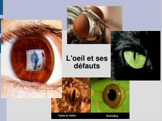L'oeil et ses défauts