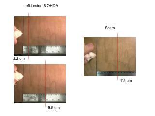 Left Lesion 6-OHDA