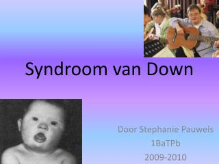 Syndroom van Down