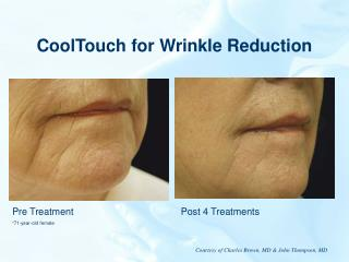 CoolTouch for Wrinkle Reduction