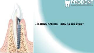 """"""" Implanty Ankylos  –  zęby na całe życie """""""