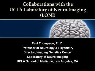 Collaborations with the UCLA Laboratory of Neuro Imaging (LONI)