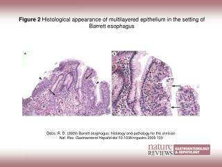 Figure 2  Histological appearance of multilayered epithelium in the setting of Barrett esophagus