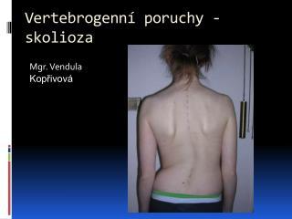 Vertebrogenn�  poruchy -  skolioza